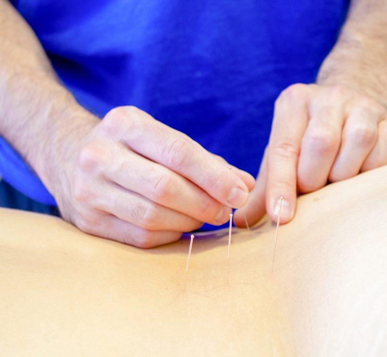 Medicina tradicional china. Sendai centro de fisioterapia - osteopatía en Donostia